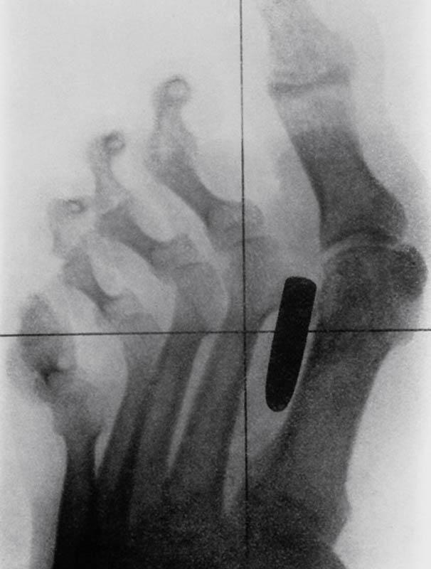 Член во влагалище рентгеновский снимок 6 фотография