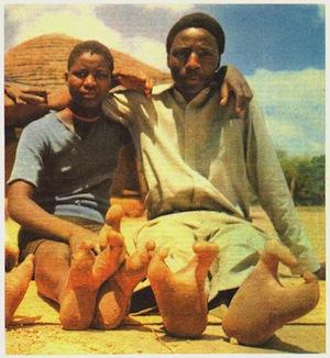 25% жителей Зимбабве рождаются всего с двумя пальцами на ногах.