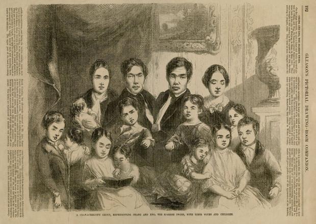 Первые известные науке сиамские близнецы жили каждый своей жизнью в разных домах