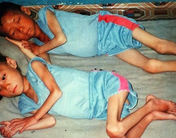 10 случаев глобального голода, приведшего к каннибализму