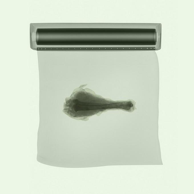 Рентгеновские снимки David Arky
