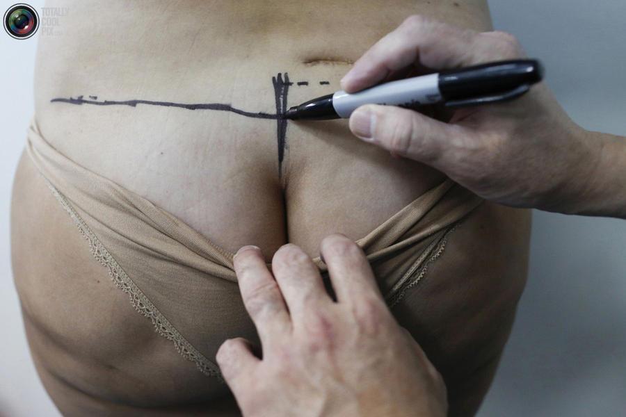 Восстановительная пластическая хирургия (30 фото)