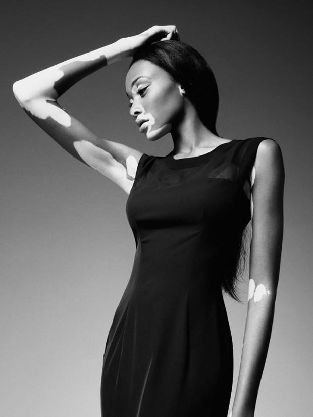 Редкое заболевание кожи не помешало этой красивой девушке стать успешной моделью