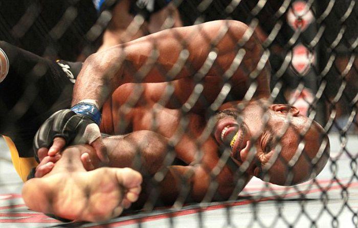 Андерсон Силва получил жуткий перелом голени на ринге (11 фото)