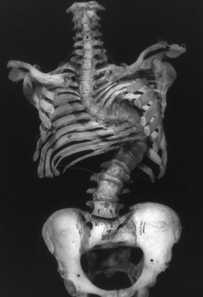Скелет человека с запущенным сколиозом