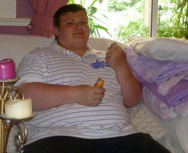 Последствия потери большого количества лишнего веса (8 фото)