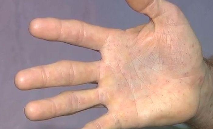 Последствия встречи с дикобразом (5 фото)