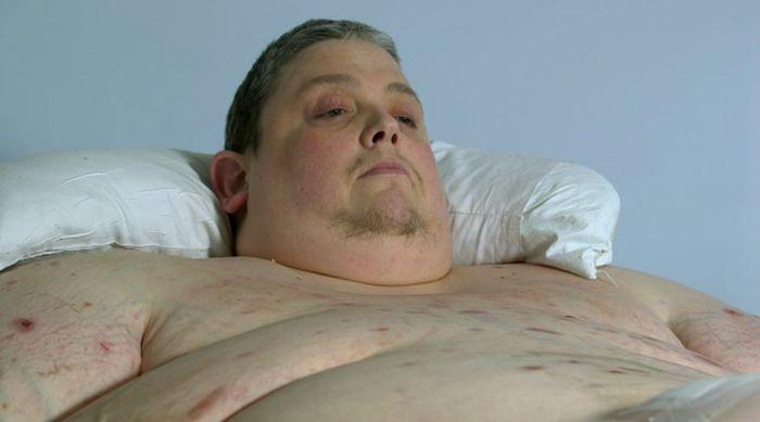 Рентгеновский снимок тела 400-килограммового мужчины (5 фото)