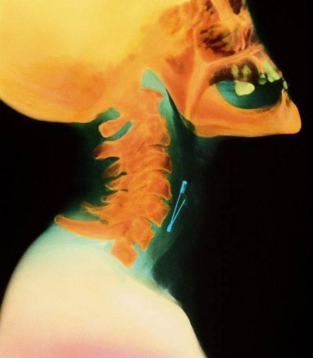 Жуткие рентгеновские снимки (22 фото)