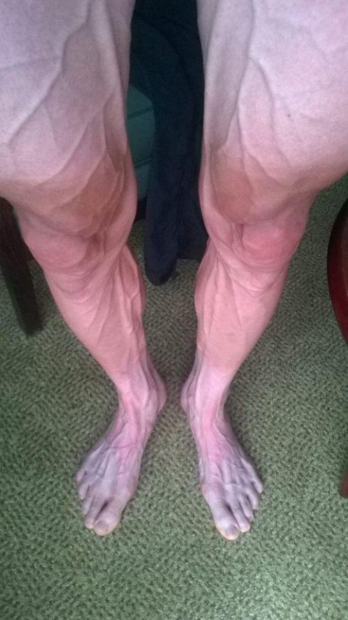 Ноги велогонщика после продолжительной гонки (2 фото)