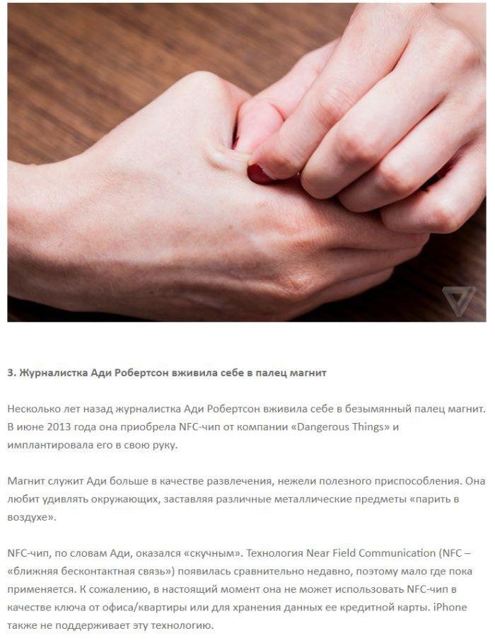 Люди-киборги, внедрившие в свое тело разные гаджеты (8 фото)