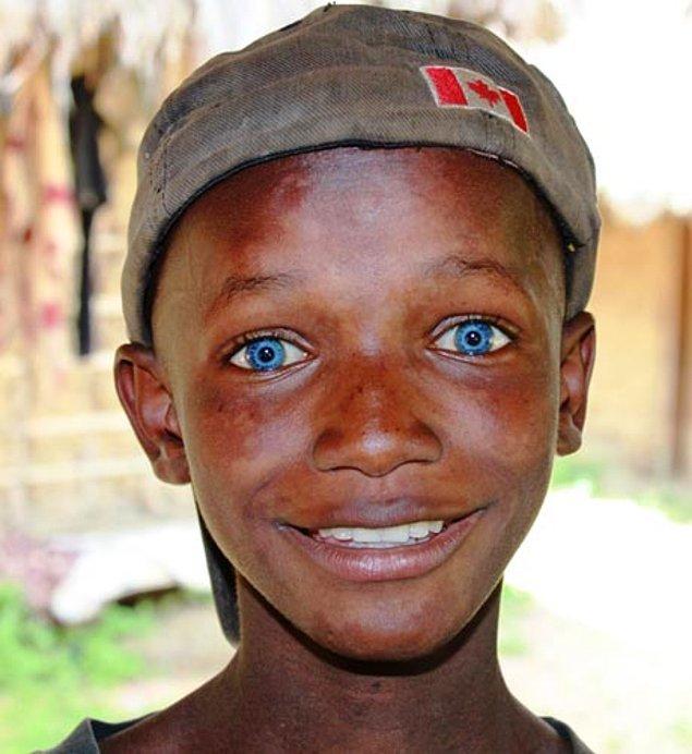 Африканские дети с голубыми глазами