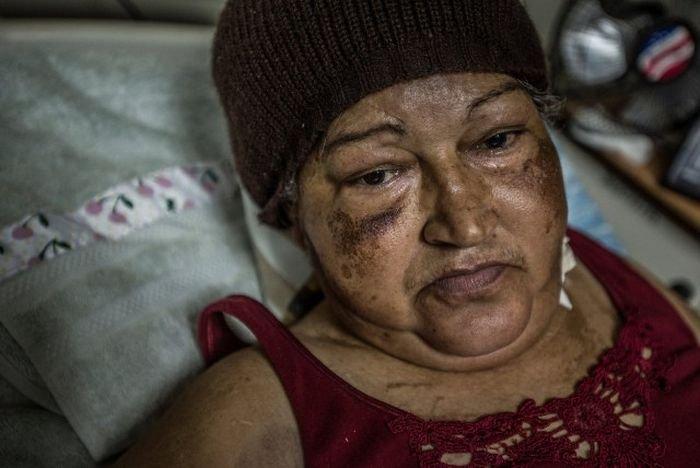 Больницы Венесуэлы - страны с самыми большими запасами нефти