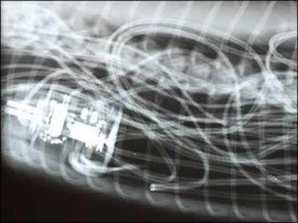 Жуткий рентген (20 фото)