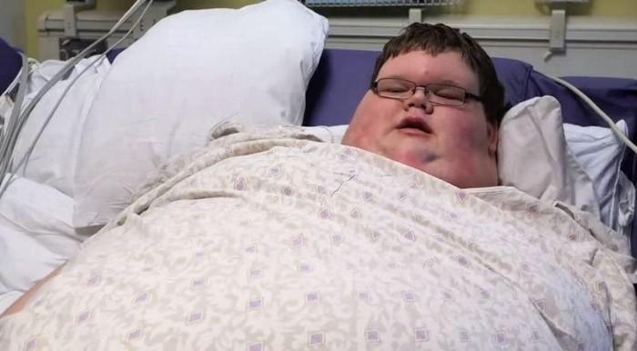 Как 320-килограммовый 15-летний подросток похудел вдвое (8 фото)