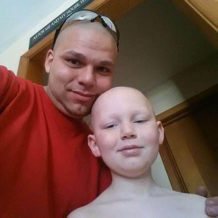 Отец сделал на голове татуировку в форме шрама своего сына