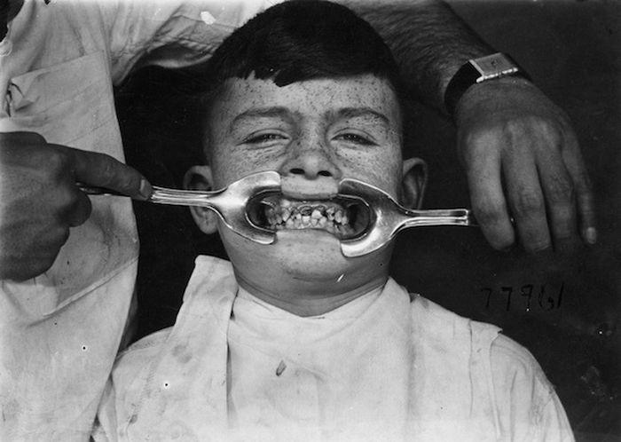 Жуткие стоматологические инструменты прошлых лет