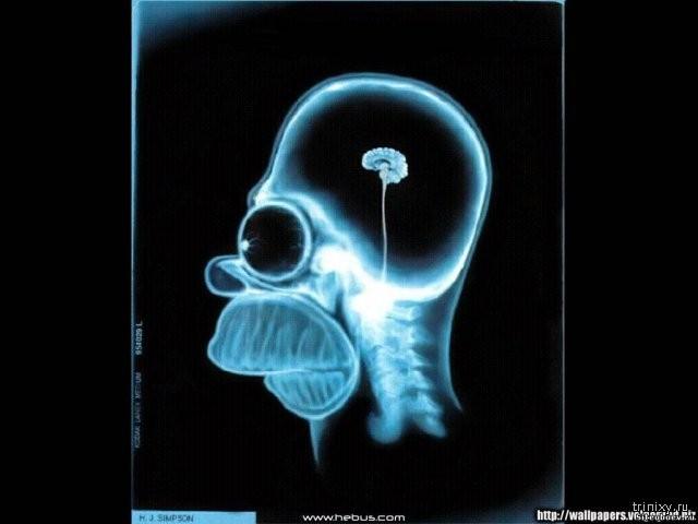 Мужчина с 10% мозга живет нормальной жизнью