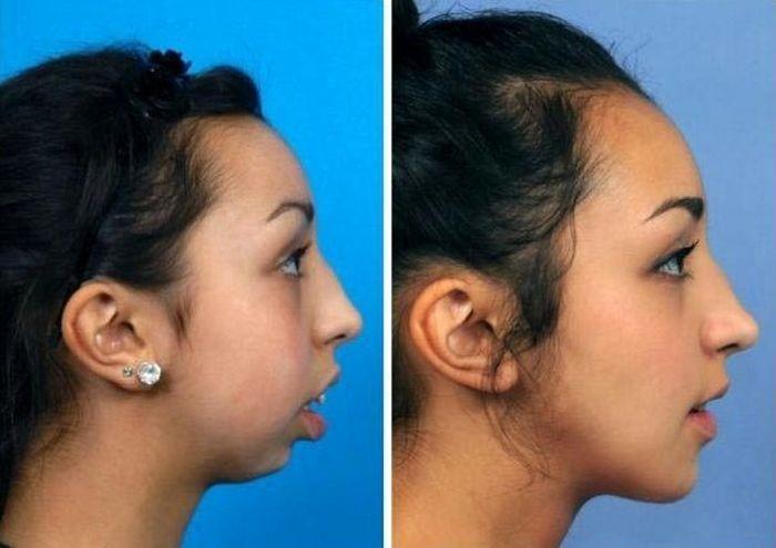 Невероятное преображение девушки с недоразвитой нижней челюстью (2 фото)