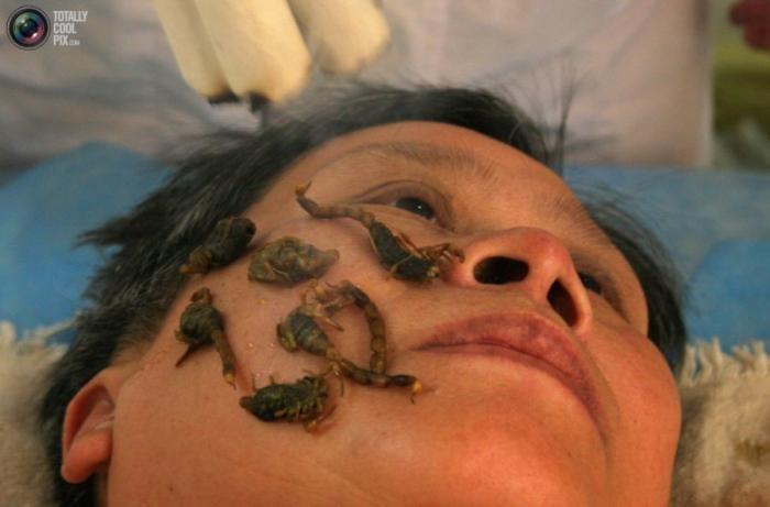 Нетрадиционная медицина (20 фото)