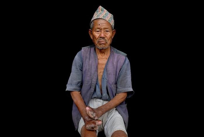 Деревня прокаженных в 10 км от столицы Непала (18 фото)