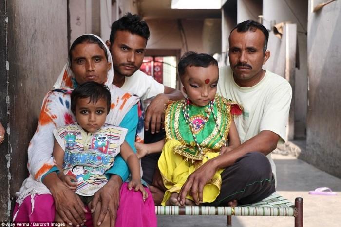 Мальчика с дефектом черепа считают реинкарнацией Индуистского Бога