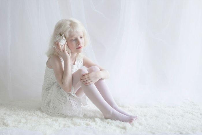 Уникальная красота людей-альбиносов