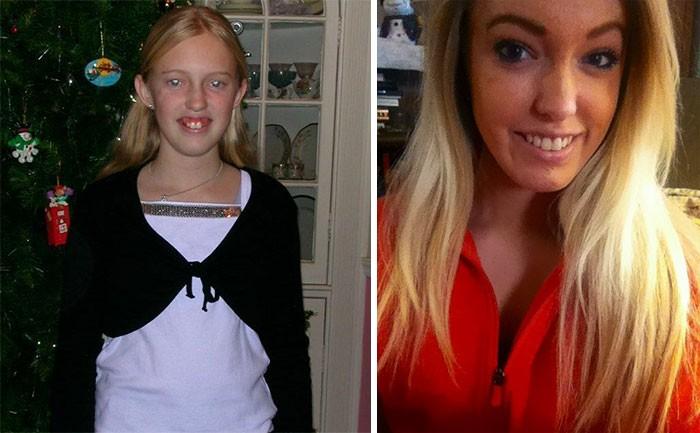 До и после: 50 «гадких утят», превратившихся в «прекрасных лебедей»