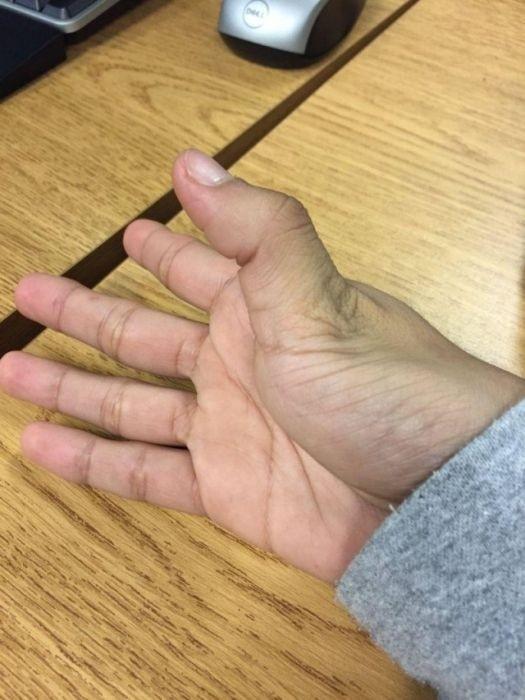 Участники нового флешмоба делятся снимками вывихнутых пальцев