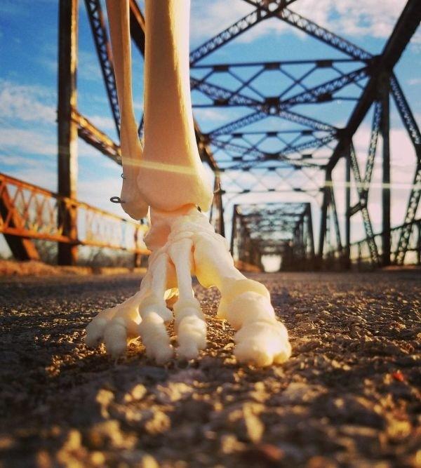 Инстаграм-аккаунт для своей ампутированной ноги