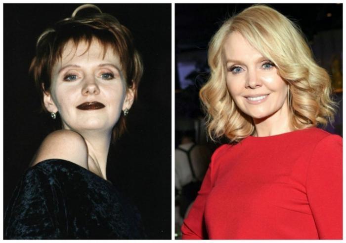 Российские знаменитости до и после пластики (11 фото)