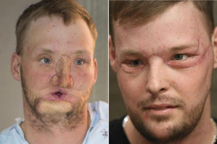 В США провели успешную операцию по пересадке лица