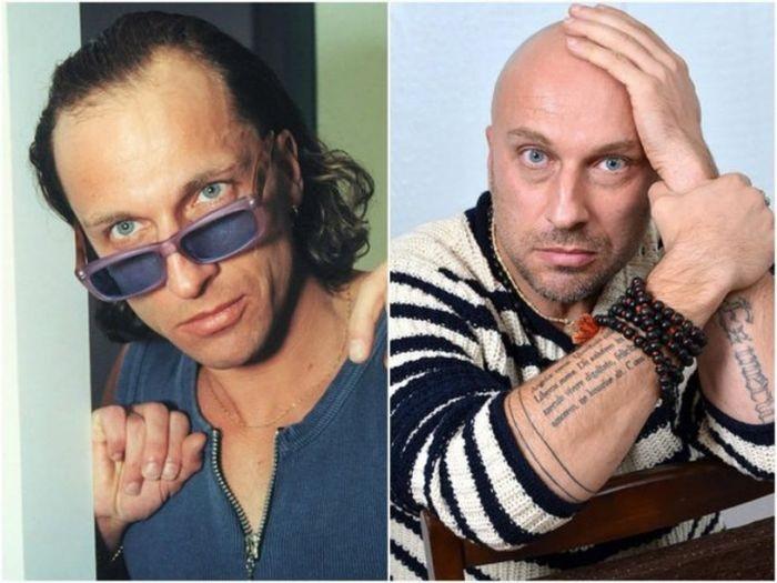 Знаменитости до потери волос (9 фото)