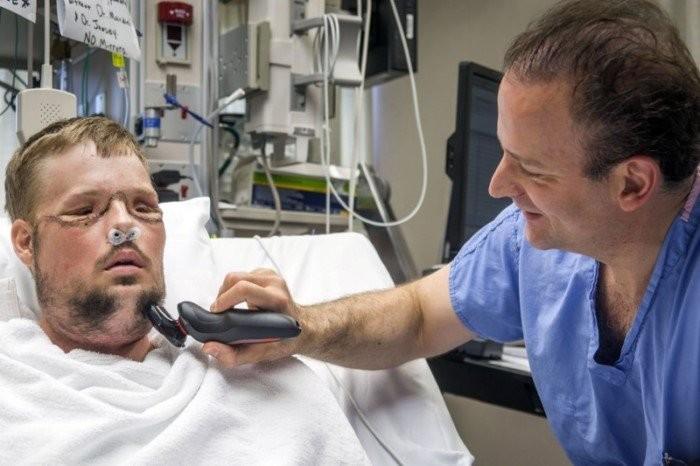 Невероятные результаты пересадки лица, сделанной после того, как он выстрелил себе в лицо (13 фото)