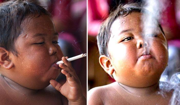 Как сложилась жизнь 2-летнего курильщика, выкуривавшего по 40 сигарет в день (6 фото)