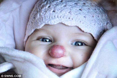 Девочка с врожденным носом клоуна (3 фото)