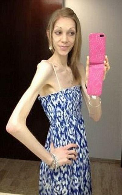 Британка поборола анорексию и увлеклась бодибилдингом (5 фото)