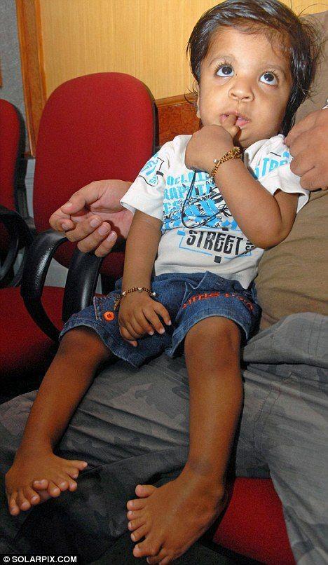 Сколько пальцев у ребенка (4 фото)
