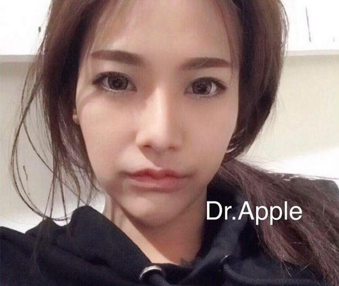 В Азии появился новый тренд в изменении формы губ (9 фото)