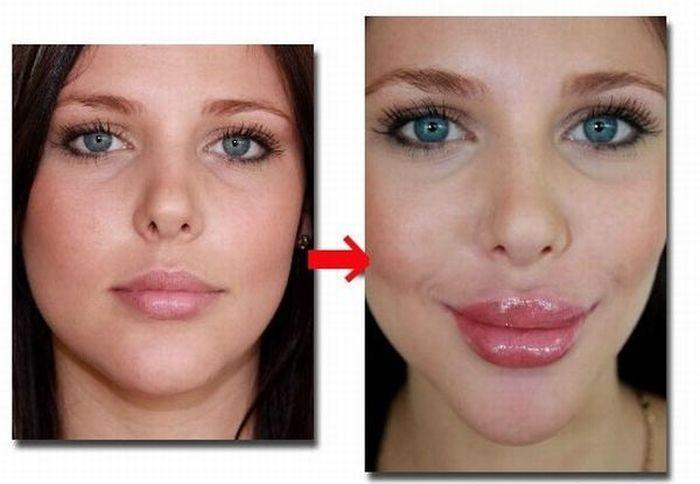 Как быстро накачать губы (3 фото)