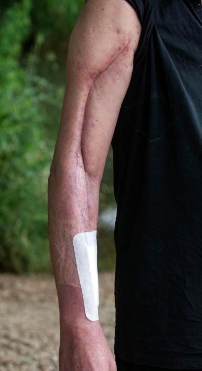Британец едва не погиб от укуса ложной черной вдовы (3 фото)
