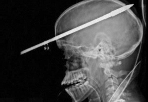 Гарпун в голове (5 фото)