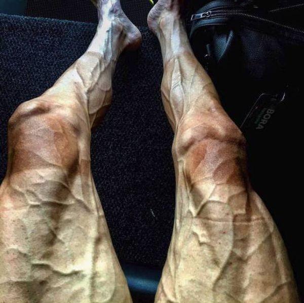 Ноги велогонщика после 16 этапов «Тур де Франс» (2 фото)