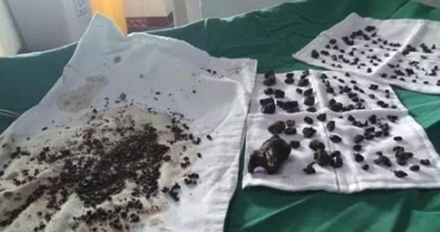 Хирурги извлекли из организма женщины две сотни камней (5 фото)