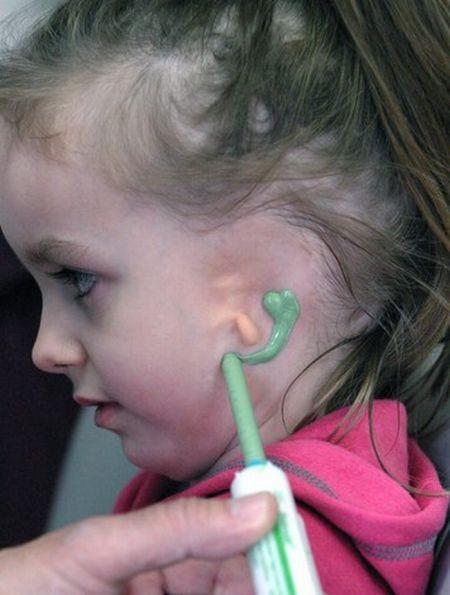 Новое ухо для маленькой девочки (12 фото)