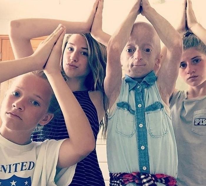 Кайли Халко: девочка-старушка, которая лечит артрит хип-хопом (7 фото)