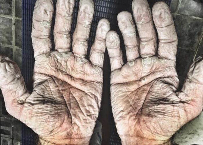 Руки гребца после 1000-километрового полярного похода (2 фото)