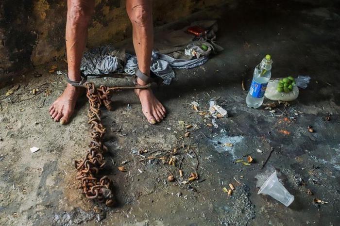 Психически больного китайца после 17 лет заточения сняли с цепи (5 фото)