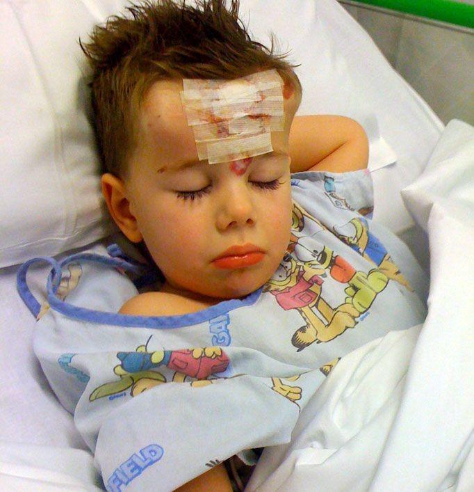 Ребенку вшили под кожу рога (6 фото)