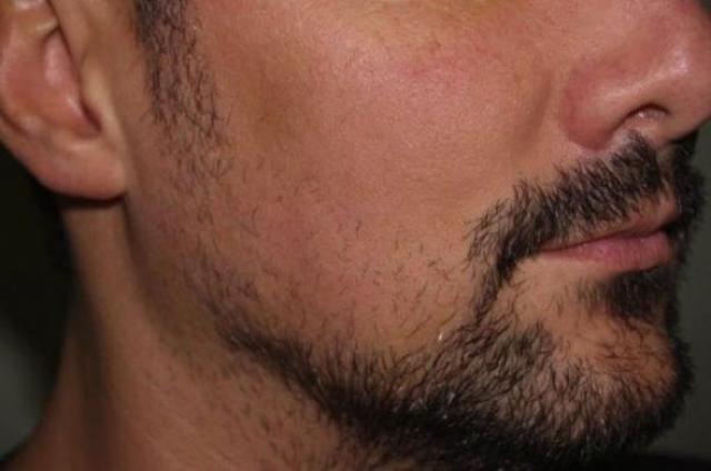 Пересадка бороды (4 фото)